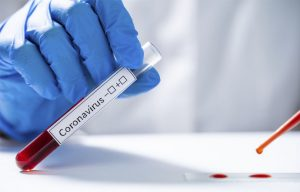 Medidas de prevención de Coronavirus